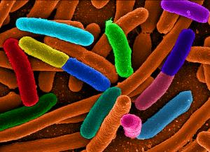 diverse_e_coli